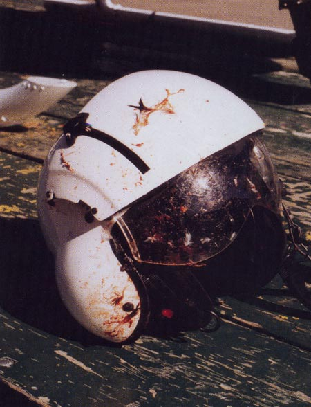 14. Plate 7. The helmet and face-shield probably saved the life of the pilot when he was struck in the face by windshield and bird debris. Photo courtesy Transport Canada.